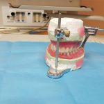 Comment choisi la bonne prothèse dentaire